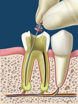 Plomby, extrakcie, koreňové kanáliky (endodoncia)